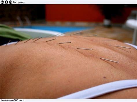 agopuntura  dimagrire