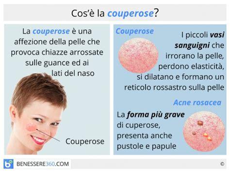 rosacea alimentazione couperose cause cure e rimedi naturali per l acne rosacea