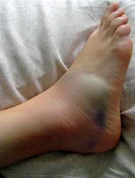 sprained ankle what does a sprained ankle look like