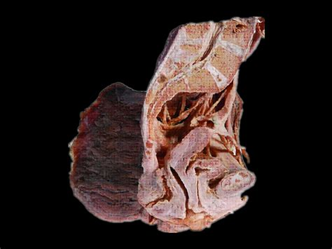 sagittal section of male pelvis median saggital section of female pelvis plastinated