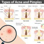 healthy fats and acne how fats and sebum are correlated