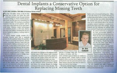 Mba Implants In Adults by Cascade Business News Dental Implants A Conservative