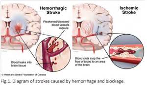 Traditional chinese medicine on post stroke