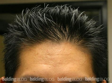 how to fill thin hair lines juvenile vs mature hairline am i going bald with