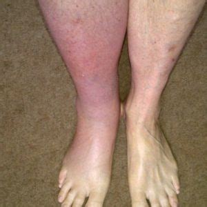 common blood clots in legs treatment that you need to