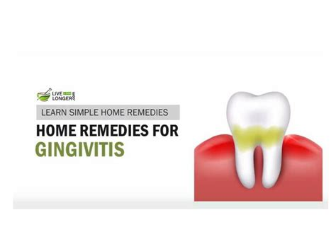 ppt best home remedies for gingivitis powerpoint