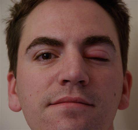eye swollen swollen eye flickr photo