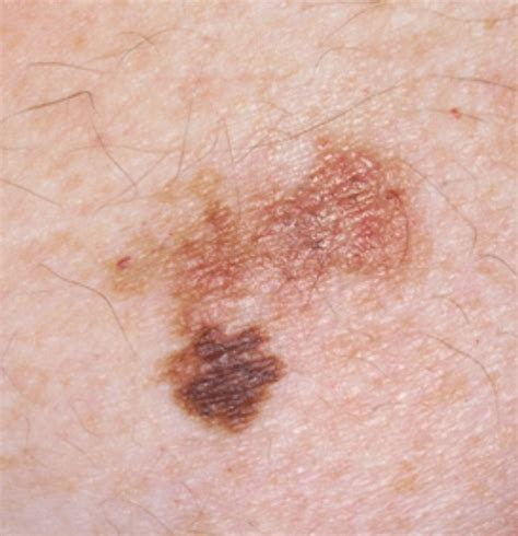 About My Skin Cancer by Pictures Of Skin Cancer Early Stages Of Skin Cancer
