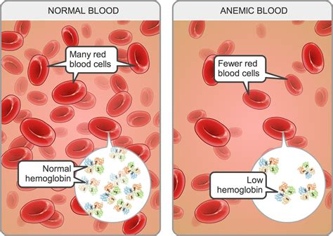 Iron In Blood iron deficiency anaemia alale is the most powerfull