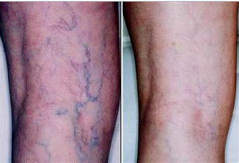 spider veins on the legs treatments spider veins leg vein treatments alpharetta med spa
