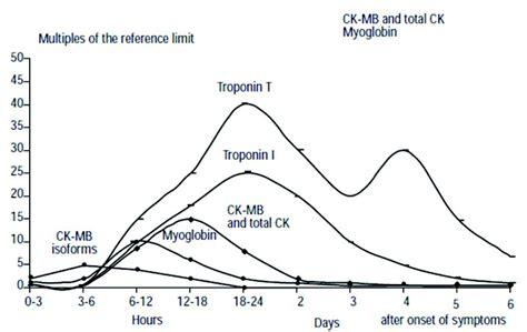 creatine kinase levels sigma diagnostics ck mb