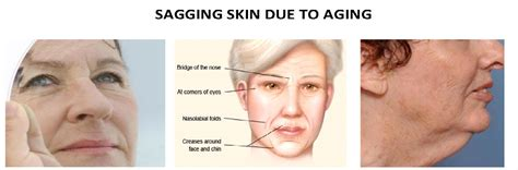 Saggy Solutions by How To Get Rid Of Saggy Skin Eye Neck Skin