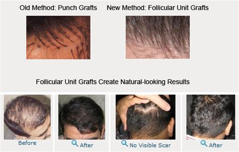 hair restoration hair transplant hair replacement follicular unit latest technology in hair transplant
