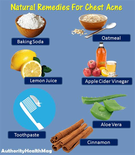 top three homeopathic remedies for acne homeopathic acne how to get rid of chest acne fast natural remedies