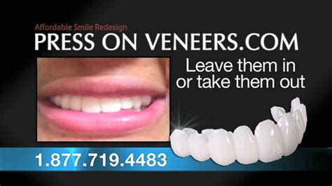 press on veneers how much does it cost youtube