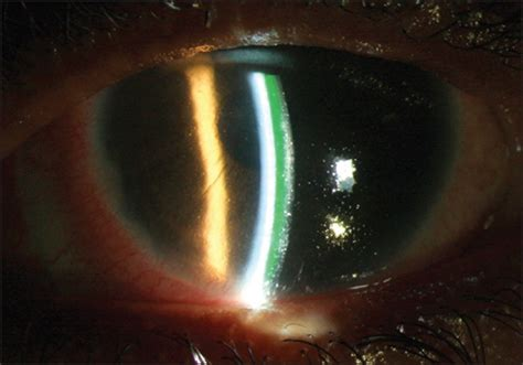 A Slit L Examination Includes Viewing The by View Image