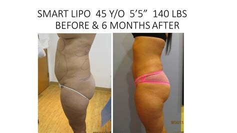 Detox After Smart Lipo by Liposuction New Radiance Of Wellington