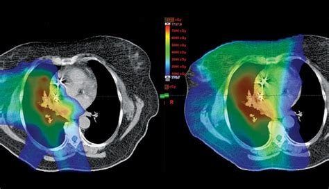 proton therapy lung cancer proton therapy for non small cell lung cancer md