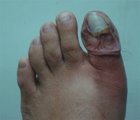 nail detached from nail bed pedicure risks ingrown toenail infection loss of nail
