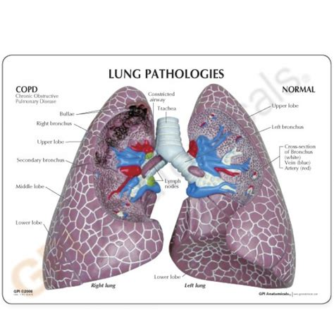 pathological lung sections diseased lung anatomy model 3110 copd asthma lung cancer