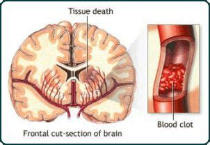 what causes blood clots after c section 84 best stroke resources images on pinterest