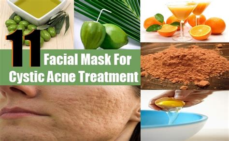 mask for cystic acne treatment mask