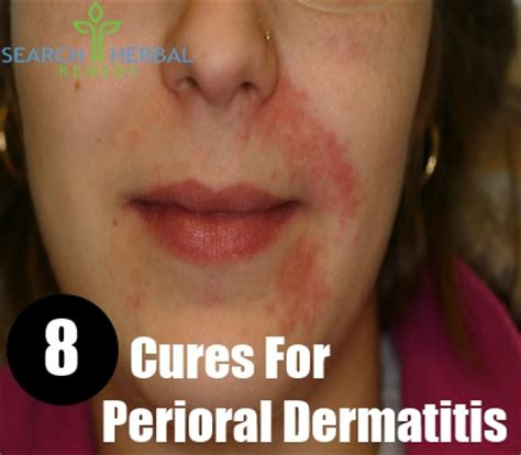 8 cures for perioral dermatitis how to cure perioral