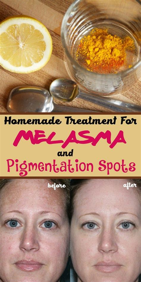 Will A Detox Help With Melasma by 1000 Images About And How To Take Care Of It On