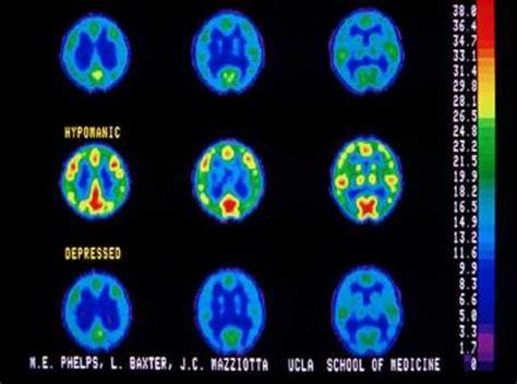 depressione bipolare test depression hypomanic encognitive