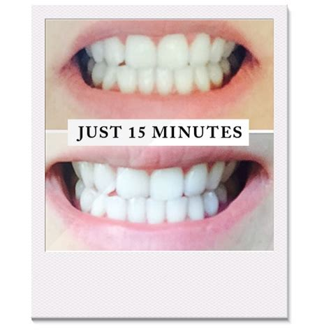 Pearly Whites   Special Offer 'Best Friends' Teeth