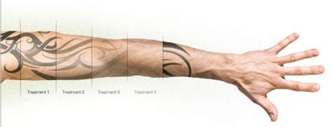 tattoo removal timeline tailored removal