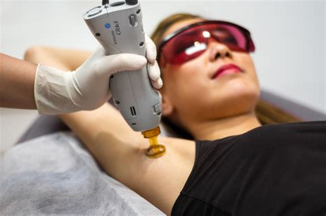 candela laser how to prepare for laser hair removal cosmetic