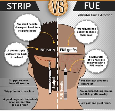 fue vs strip traditional and modern hair transplant in malaysia fue
