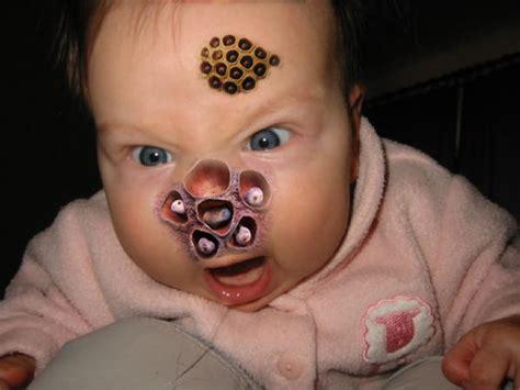 Lotus baby | Trypophobia | Know Your Meme Lotus Pod Skin Disease