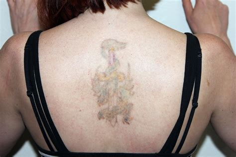 pico tattoo removal pico removal sydney removal chicago suburbs
