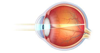 occhio interno neoox innovazione in neonatologia difetti visivi