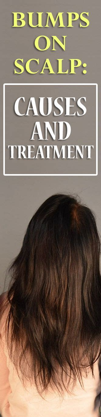 can bump hair be washed 27 best images about skin bumps on pinterest razor burns