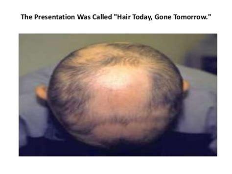 pattern hair loss treatment hair loss in women female pattern hair loss female hair