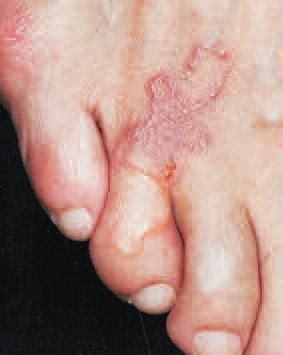 Obat Cacing Albendazole konsultasi 309 penanganan pertama pada penyakit cacing di