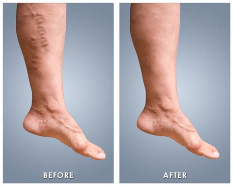 varicose veins treatment symptoms causes pictures varicose veins and spider veins treatment miami vein