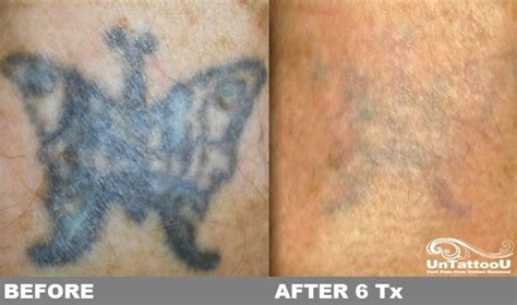 tattoo removal maryland untattoou laser removal before after 6