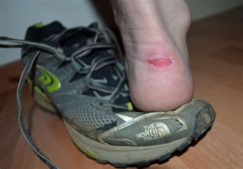 heel blisters from new running shoes plantar warts cause