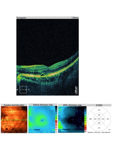 pattern macular dystrophy oct pattern macular dystrophy retina image bank