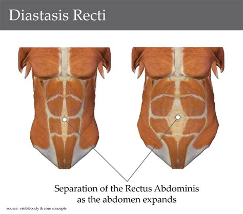c section and abdominal muscles diastasis recti abdominis an ab splitting situation