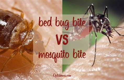 mosquito vs bed bug bed bug bites vs mosquito bites how to differentiate them