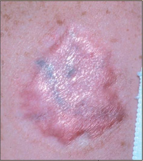 tattoo removal scars scar after a removal