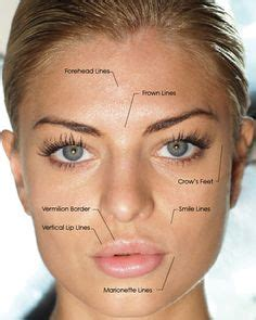 The War Of The Wrinkle Fillers by 1000 Images About Dermal Fillers On Dermal