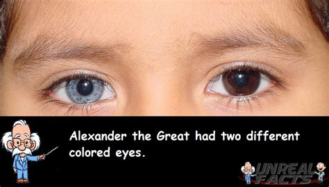 what part of the eye gives it color the great had two different eye colors