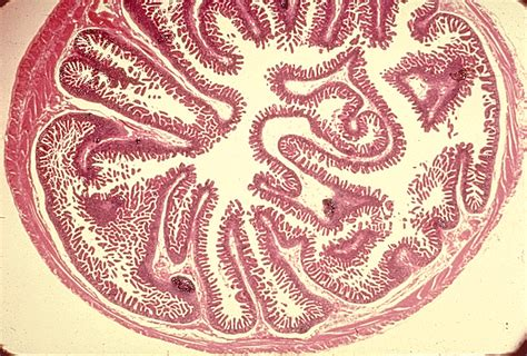 transverse section of small intestine small intestine color images