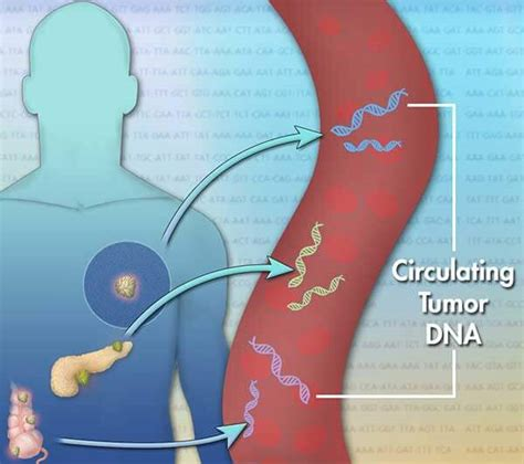 test tumore blood test may be alternative to tumor biopsy national